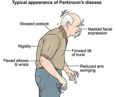 gejala parkinson