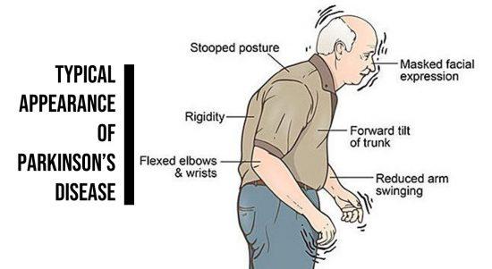 penyakit parnkinson